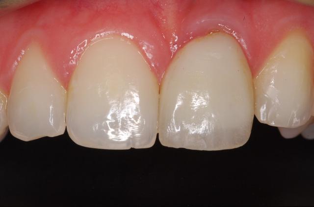 After Gum Disease Treatment - HSORC