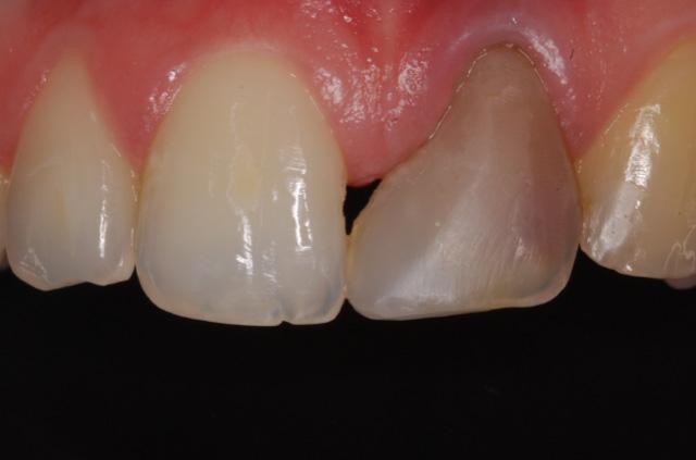 Gum Disease Treatment - HSORC
